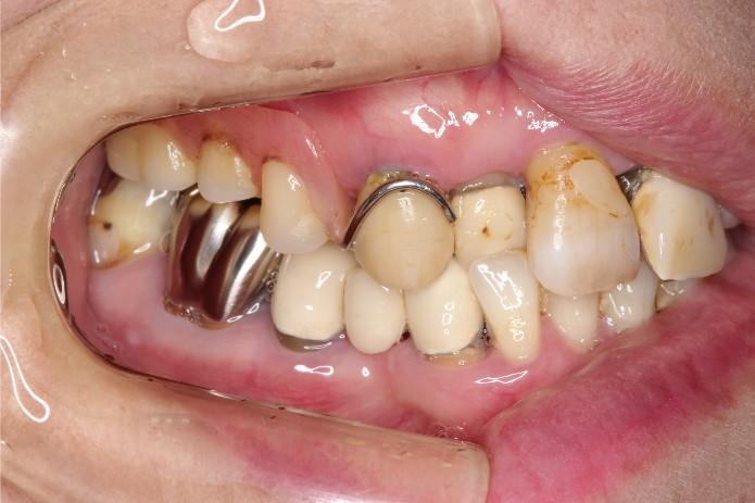 歯並び 綺麗 な